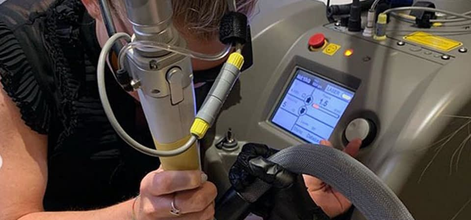Tattoo Removal Using a Q Switch Lase
