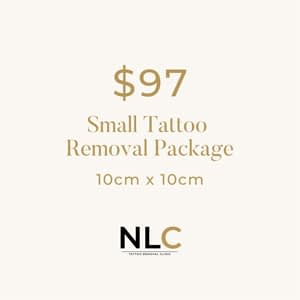$97 Tattoo Removal Special Offer